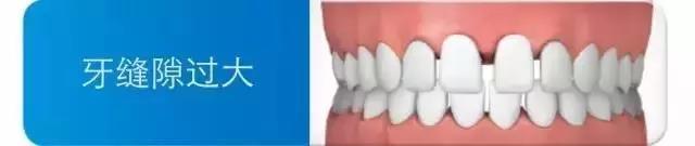牙缝大.jpg