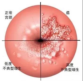 「资讯」宫颈癌筛查, 北京五洲妇儿医院女人记得定期做这项检查